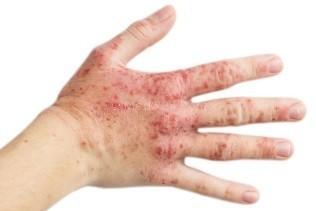 Ekzem - Symptome und Behandlungen - Online kaufen Medix24